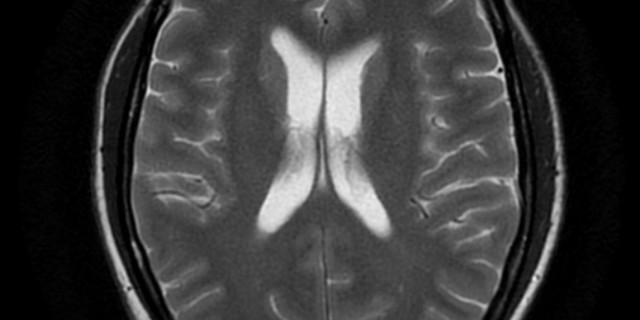 smartphone e tumori al cervello