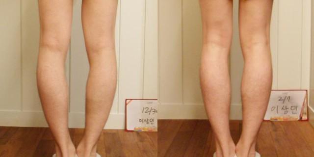 Esercizi per correggere gambe storte