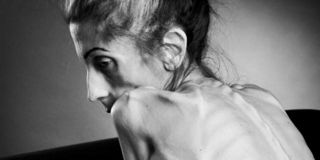 rachel farrokh anoressia